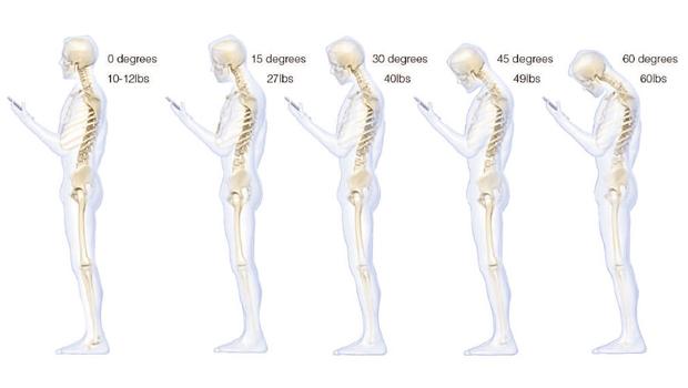 bad-posture-620w ea648
