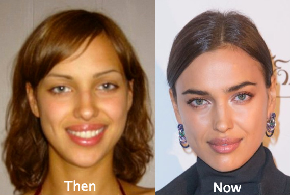 Irina Shayk Plastic Surgery before and after